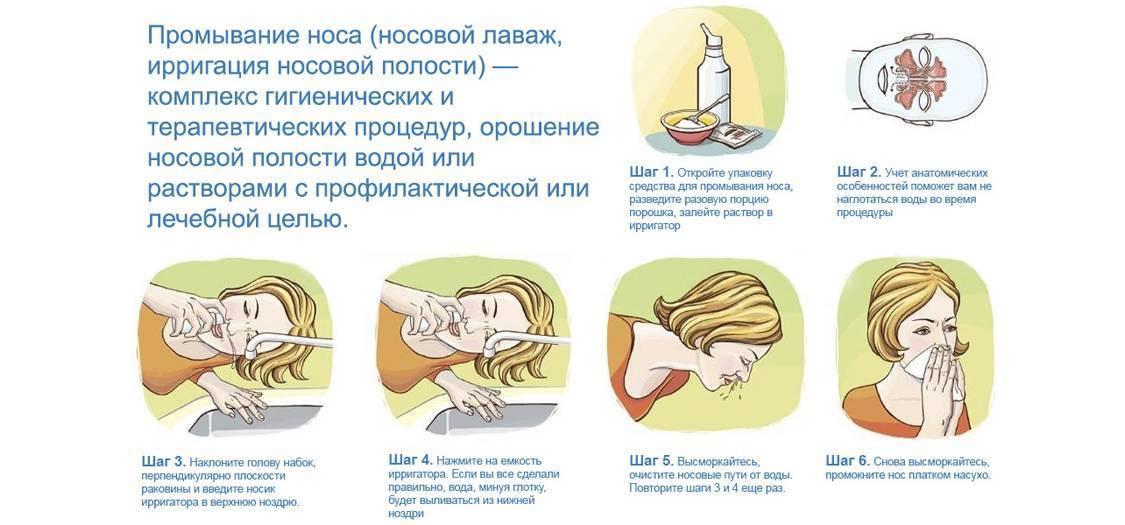 Как промыть нос ребенку или взрослому дома - правильная техника и лучшие препараты