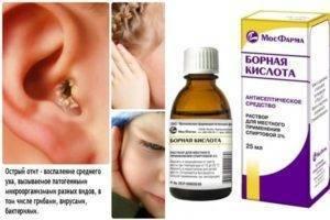 Камфорное масло в ухо: инструкция по применению у взрослых и детей, можно ли капать в ухо камфорное масло при отите