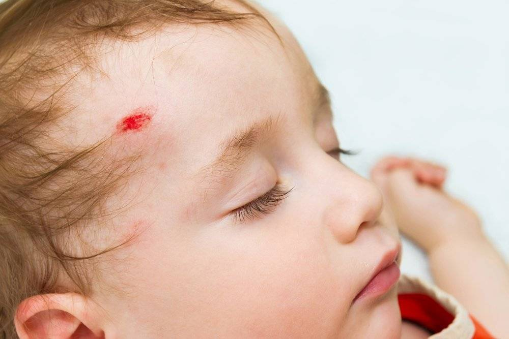 Ушиб головы, что делать? лечение, симптомы и последствия травмы