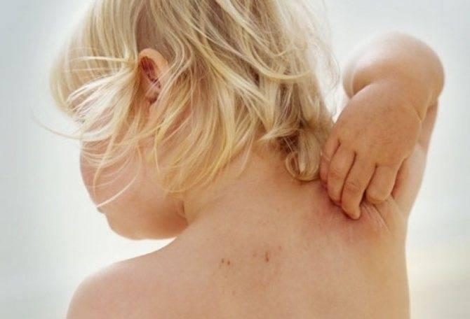 Чем снять зуд при аллергии народными средствами в домашних условиях
