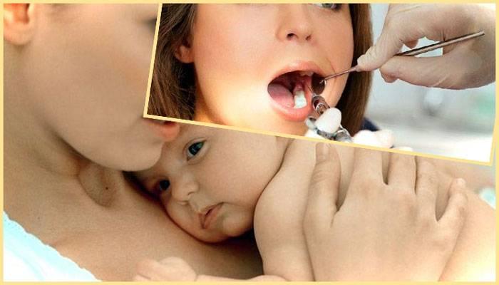 Лечение зубов при грудном вскармливании: анестезия, какие существуют риски