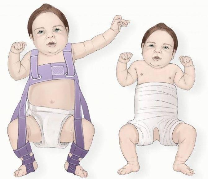 Широкое пеленание новорожденных. профилактика дисплазии тазобедренных суставов техникой широкого пеленания: пошаговый видео-урок