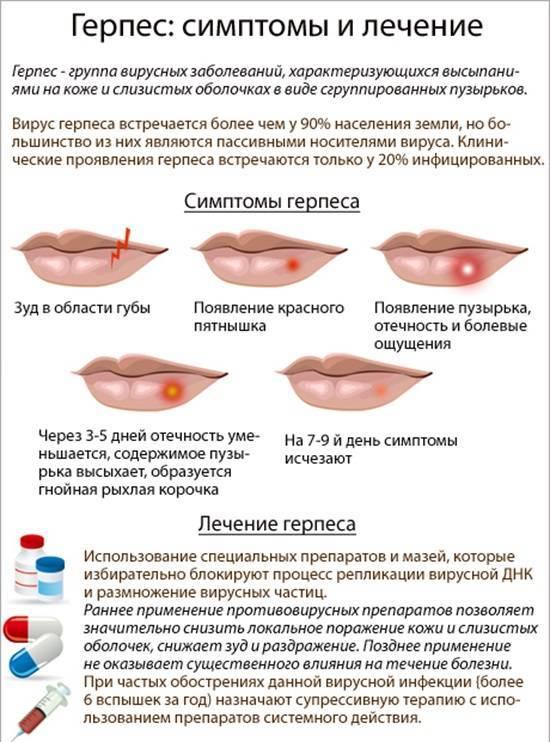 Герпес на лице (щеке, подбородке): фото, лечение детей и взрослых