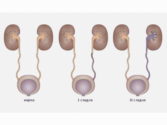 Пузырно-мочеточниковый рефлюкс у детей: причины, симптомы, лечение