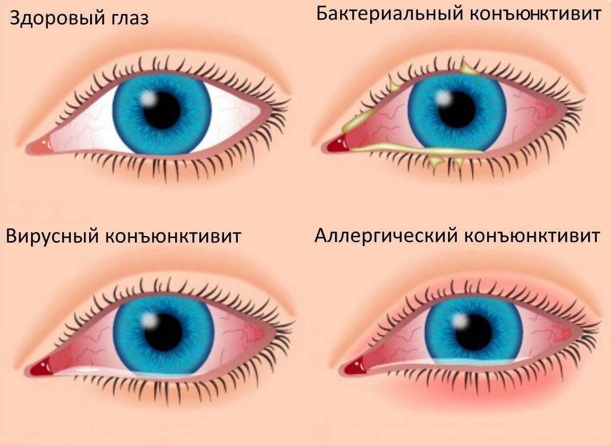 Болезни глаз у человека: список, фото, симптомы и лечение