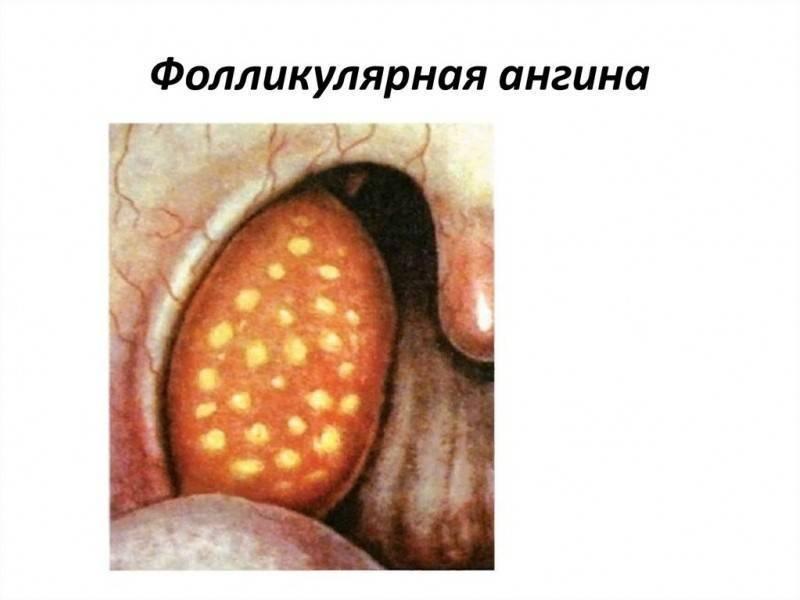 Ангина у детей симптомы и лечение фото