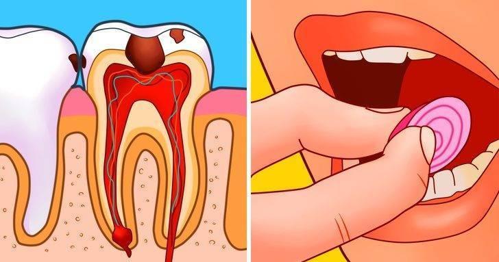Чем быстро снять или унять зубную боль