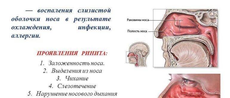 Вазомоторный ринит: симптомы и схема лечения у взрослых