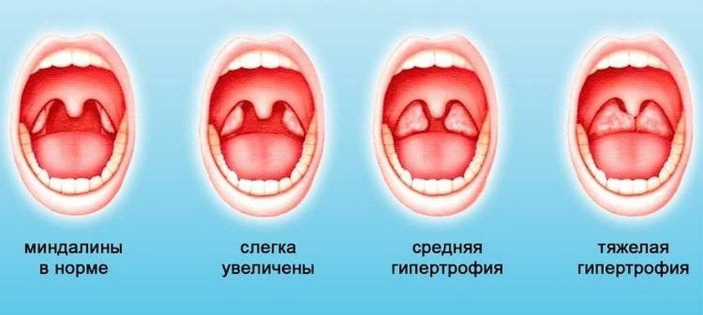 Красное горло у ребёнка: чем лечить, фото, как выглядит, с кашлем, без температуры, в месяц, 2, 3, 1 год