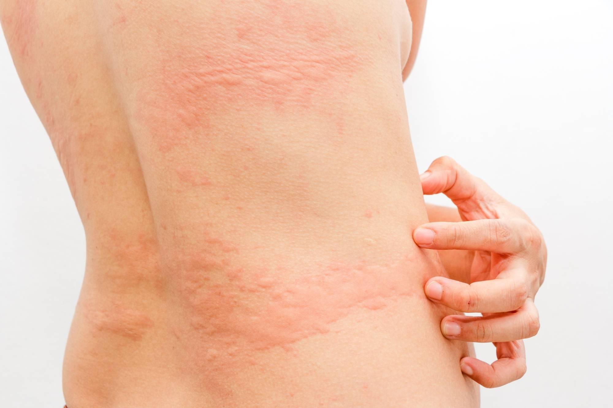Аллергическая крапивница: 6 фото, лечение у взрослых и детей, причины