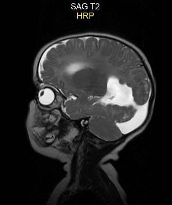 Мр-томография мозга ребенку