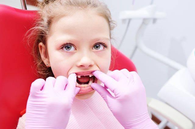 Кариес у ребенка. причины, симптомы, лечение и профилактика кариеса у детей