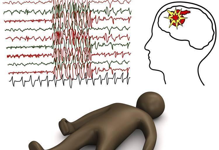 Особенности проявления эпилепсии у подростков