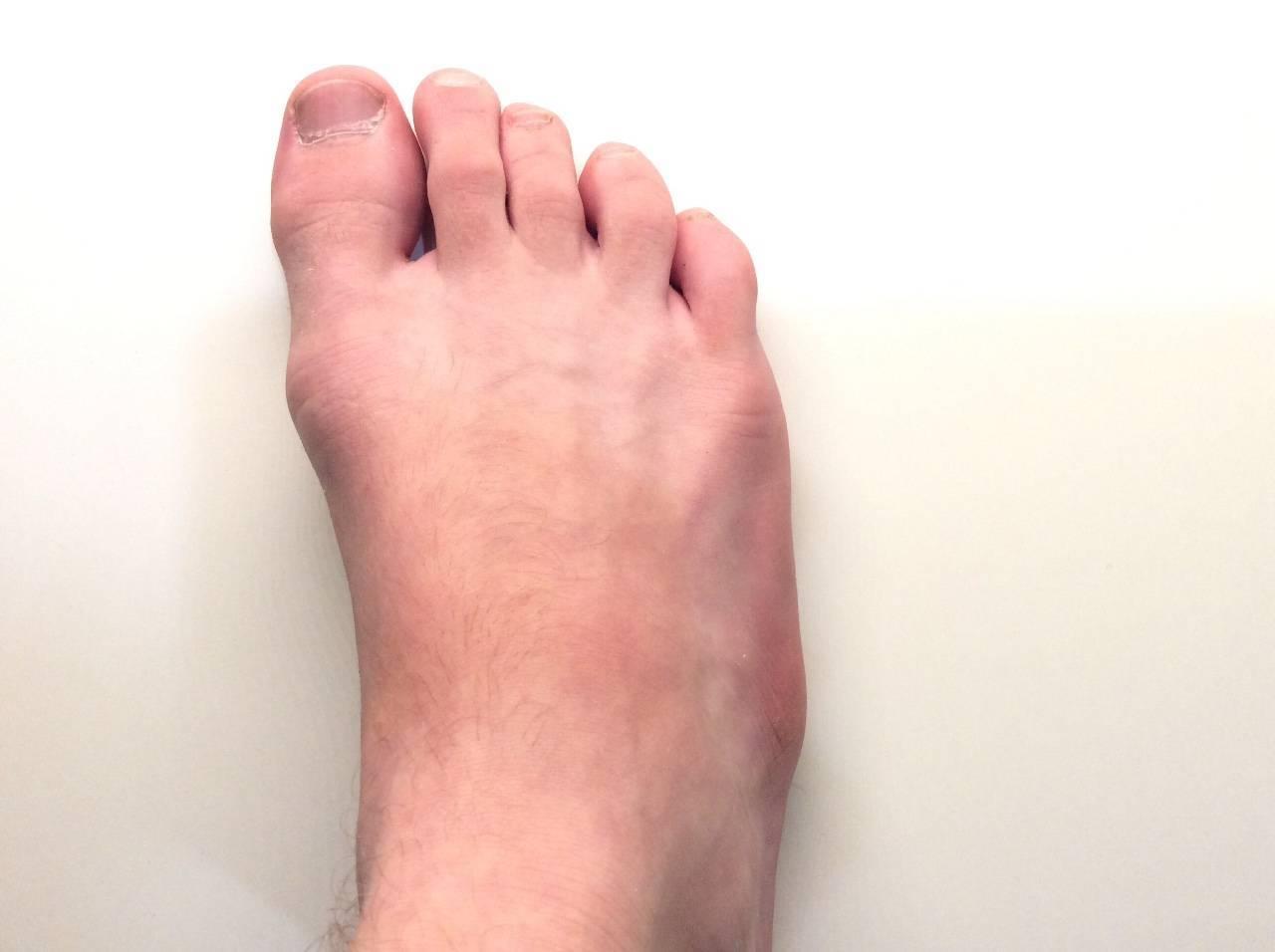 Гигрома стопы ноги (фото): лечение без операции у ребенка, код по мкб-10