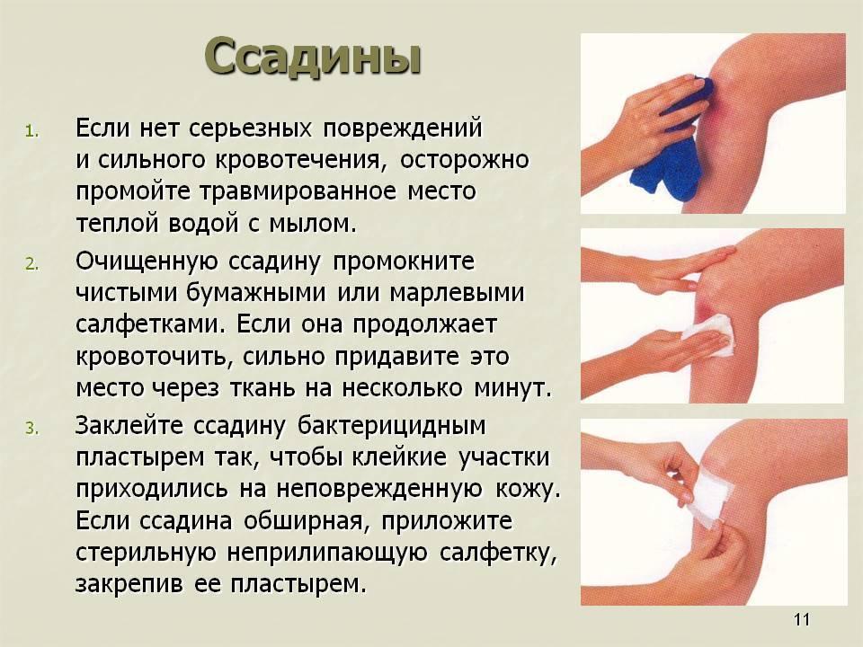 Ребенок сбил коленку как лечить. как лечить и чем обрабатывать мокнущую рану у ребенка после падения, если кожа содрана и долго не заживает