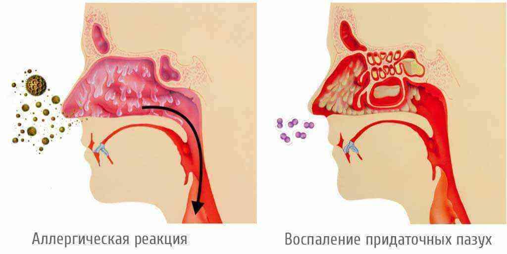Стекает слизь по задней стенке носоглотки: лечение взрослых и детей, причины