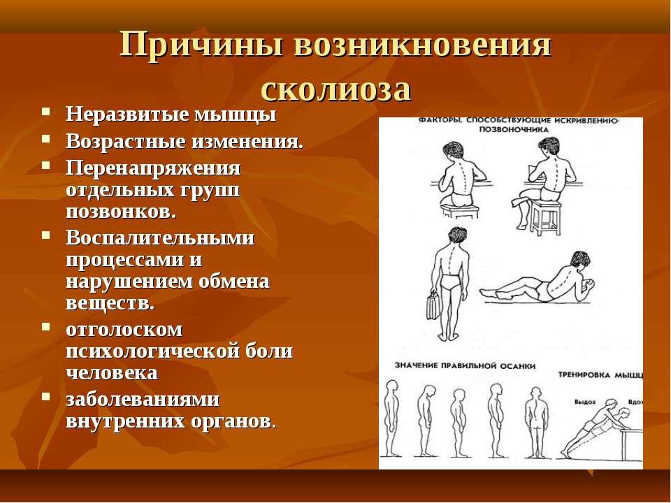 Причины и лечение нарушения осанки у детей и подростков