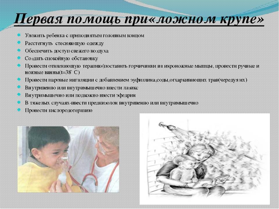 Ложный круп у детей: что это такое, симптомы и лечение, признаки, причины и неотложная помощь