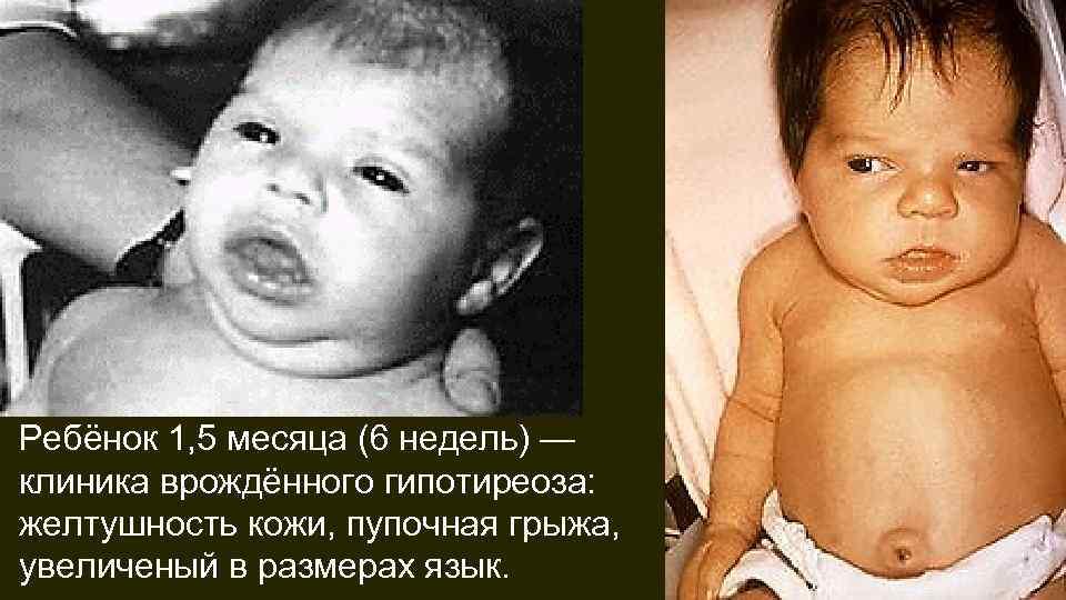 Врожденный гипотиреоз у новорожденных детей и грудничков: лечение, причины, профилактика, последствия, симптомы (фото)