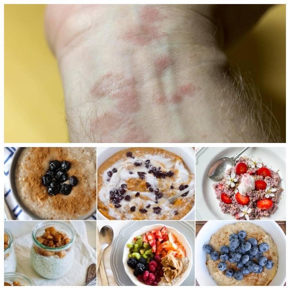 Симптомы и лечение аллергии на сахар или сладкое у детей
