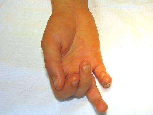 Болезнь нотта у детей: признаки, причины и лечение   здоровье ребёнка