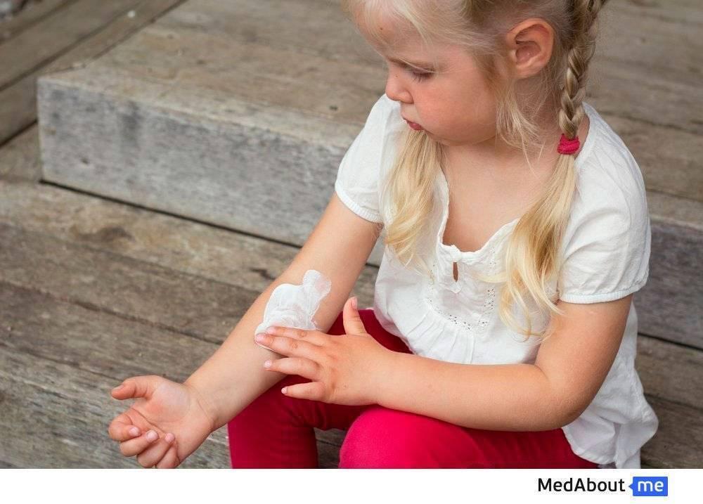 Псориаз у детей: первые признаки, симптомы, подробное описание