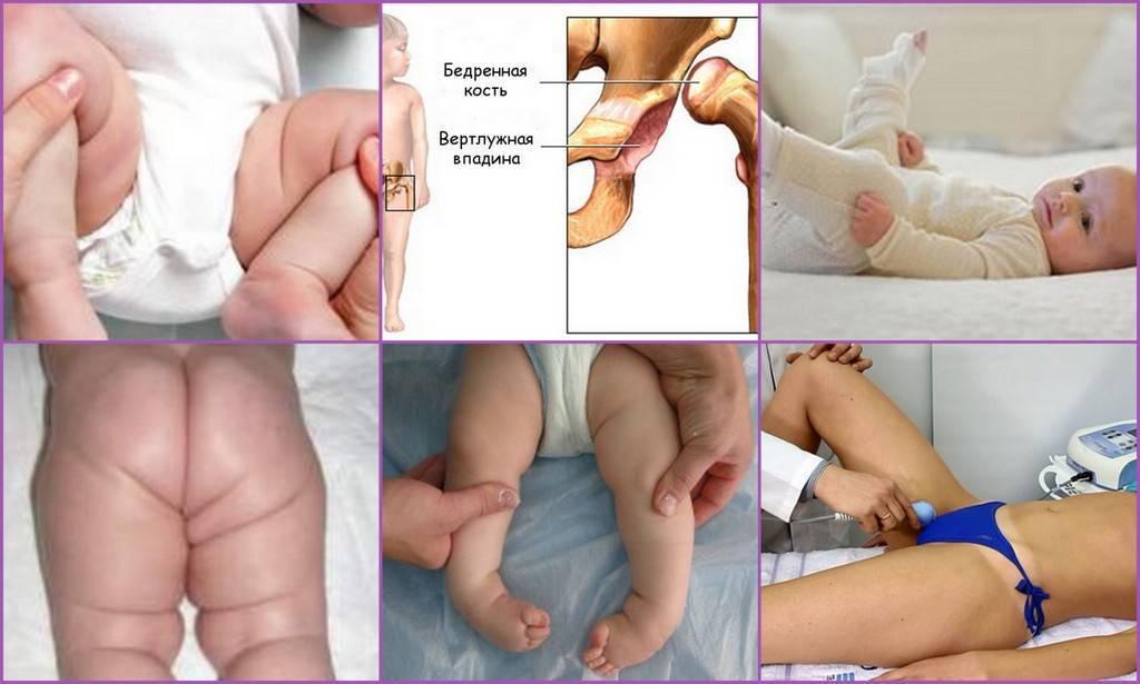 Дисплазия тазобедренных суставов у грудничка, новорожденного, у детей до года – признаки, лечение, массаж, гимнастика при дисплазии
