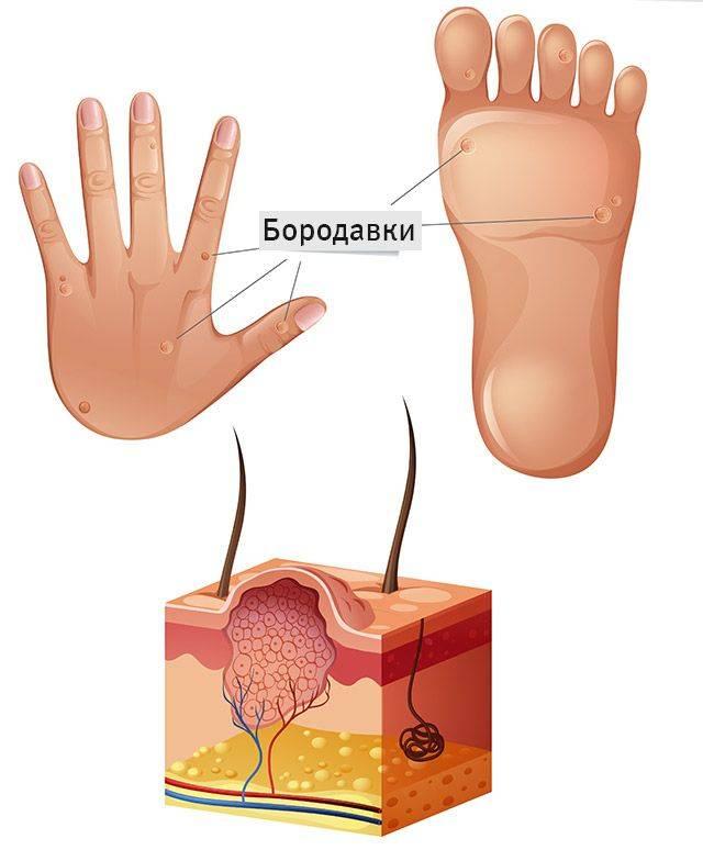 Удаление бородавок на стопе ноги: как избавится от наростов на ступнях, способы