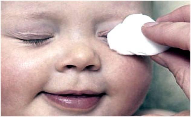 Гноится глаз у новорожденного. что делать, чем лечить дома. советы с форумов, врачей, комаровского