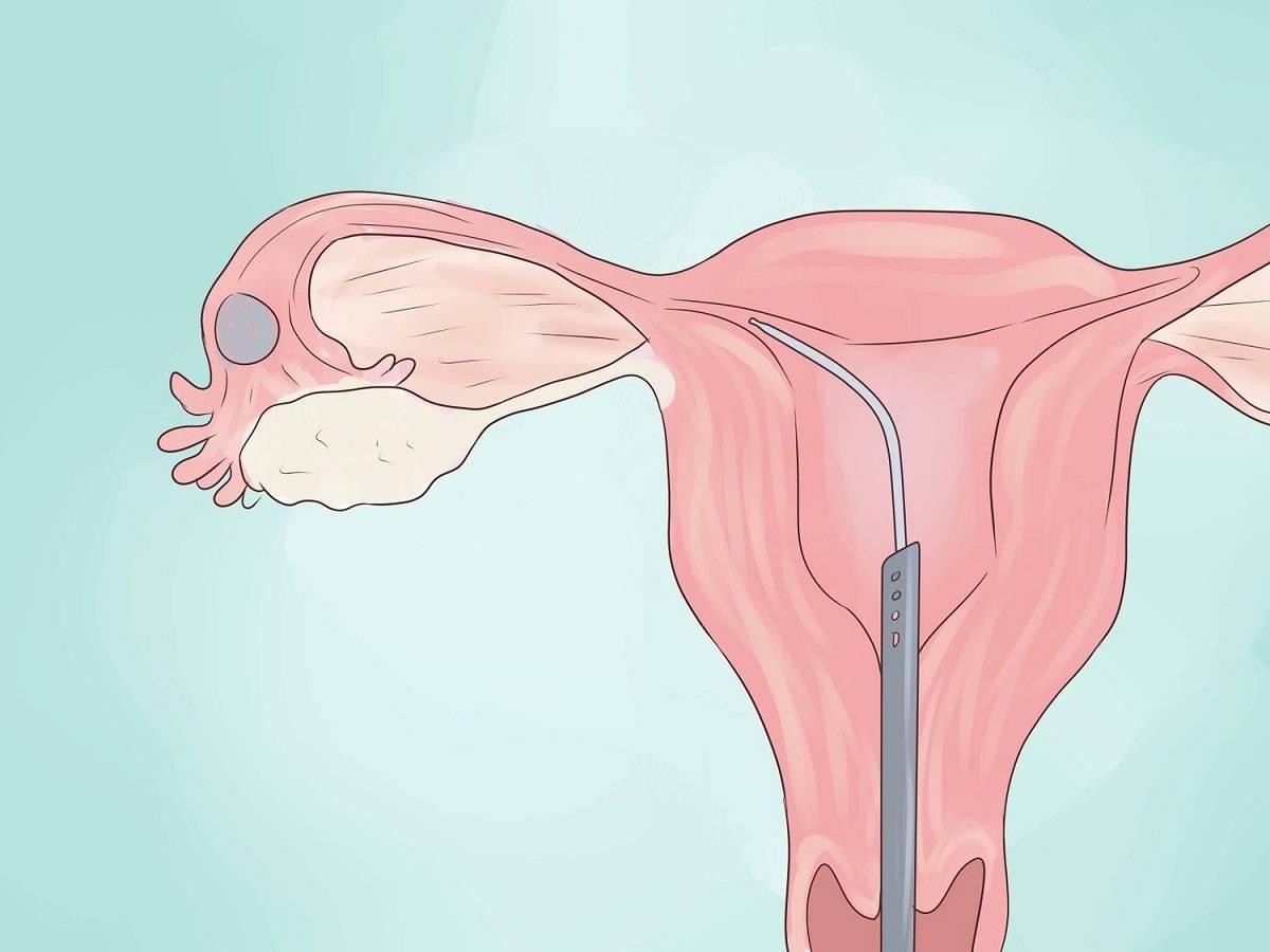 Можно ли забеременеть при эндометриозе матки: возможно ли зачать и родить ребенка + отзывы женщин, как протекает беременность
