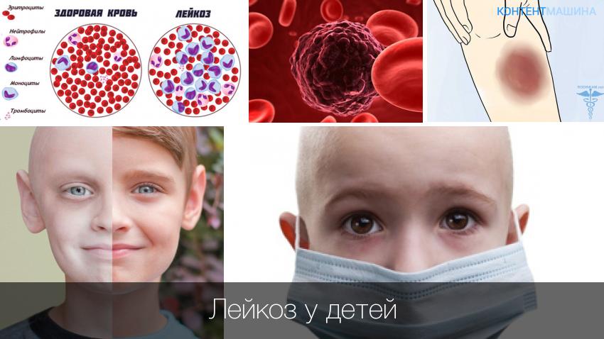 Густая кровь у ребенка при сдаче анализа