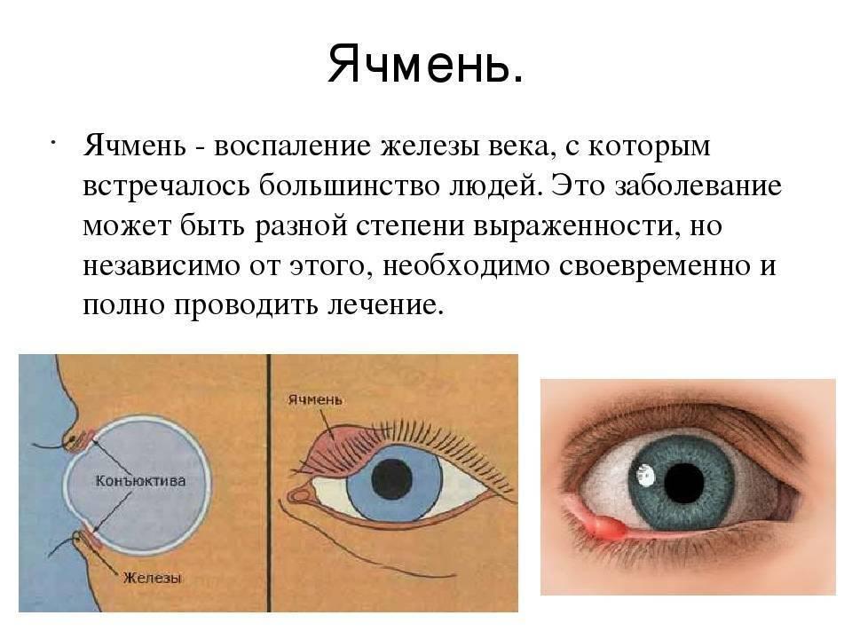 Капли от ячменя на глазу: названия самых эффективных препаратов, применение, показания, выбор