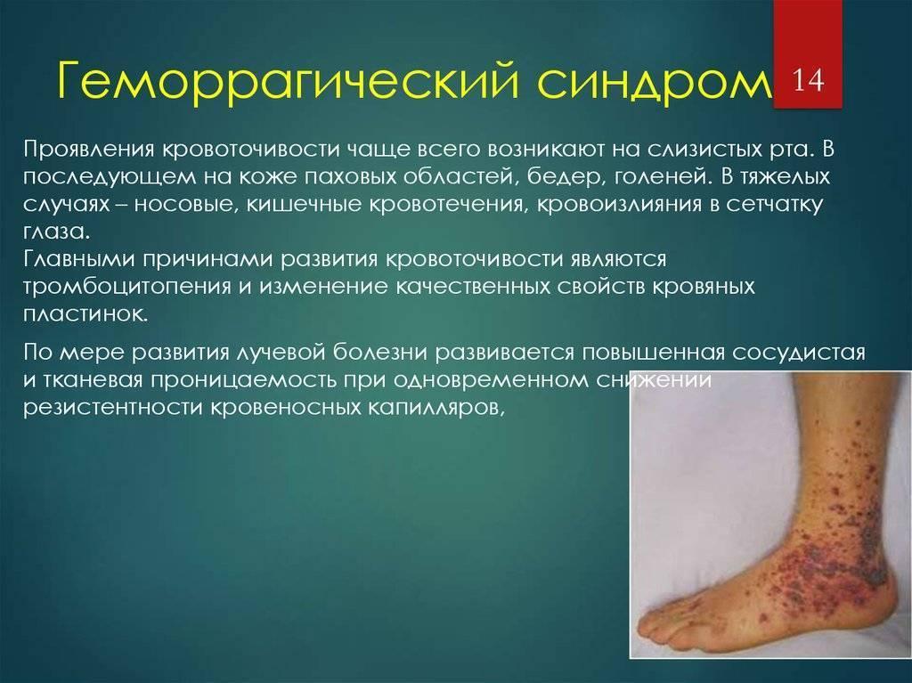 Причины, симптомы и лечение геморрагической болезни новорожденных
