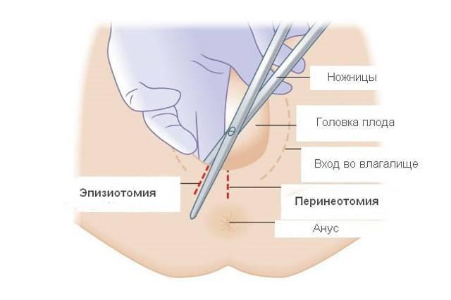 Через какое время выходят внутренние швы. швы саморассасывающиеся и синтетические, внутренние и внешние: как долго заживают после родов и чем их обрабатывать