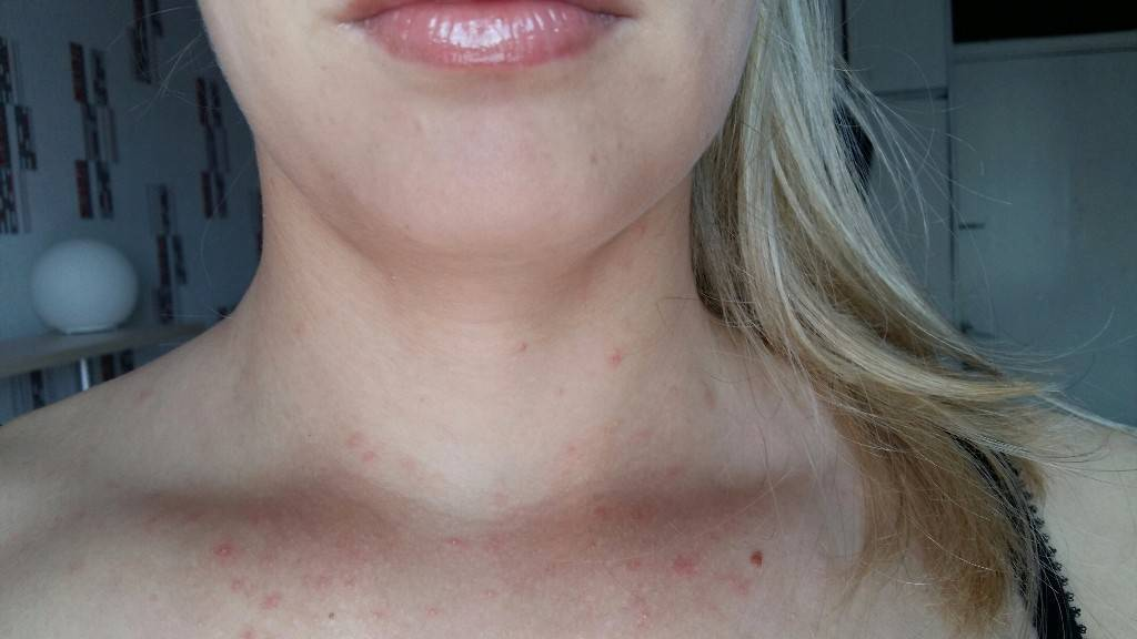 Почему возникает и как лечить сыпь у грудничка: на шее, лице и теле