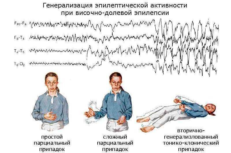 Идиопатическая генерализованная эпилепсия (игэ): симптомы болезнь, способы лечения и прогноз на выздоровление