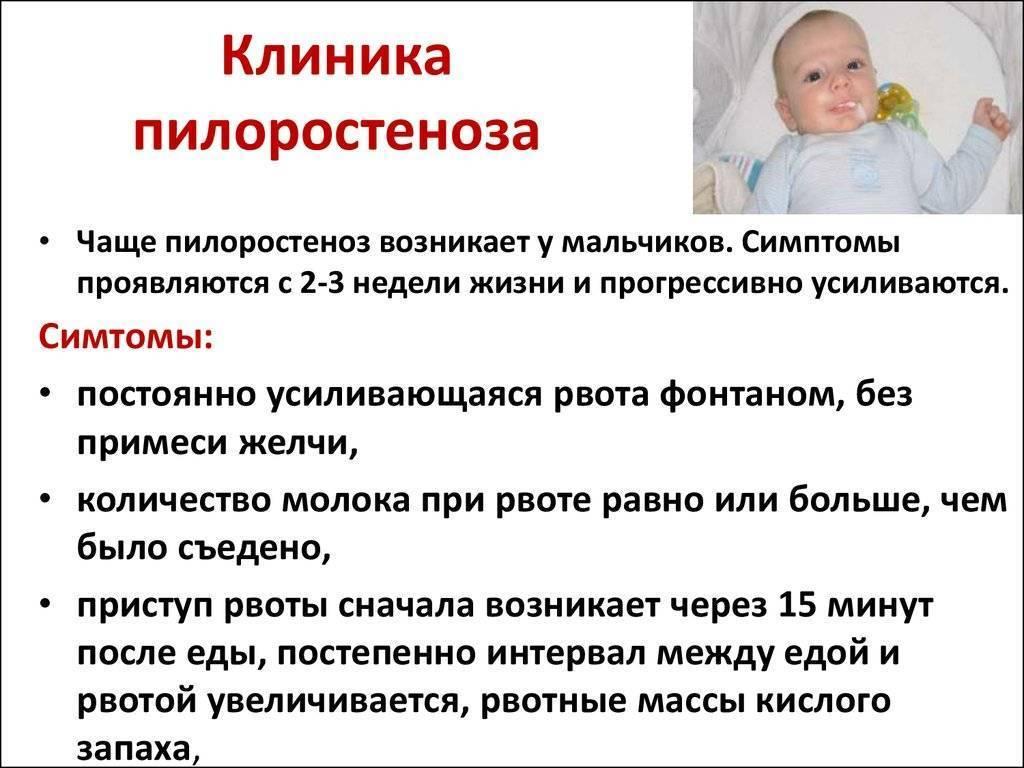 Пилороспазм у новорожденных: симптоматика, лечение и диагностика у грудных детей