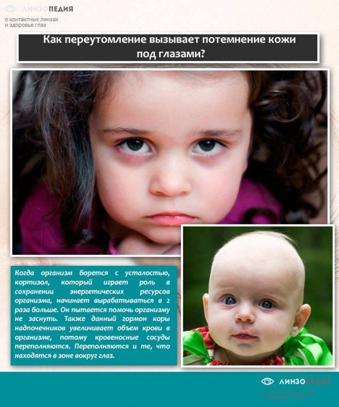"""Синяки под глазами у ребенка: причины, лечение - """"здоровое око"""""""