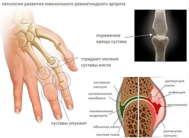 Ревматоидный артрит у детей - стадии развития, формы проявления, как диагностировать и лечить