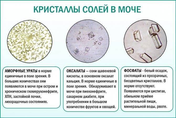 Фосфаты в моче у ребенка: что значит появление аморфных кристаллов у грудничков и детей постарше? | konstruktor-diety.ru