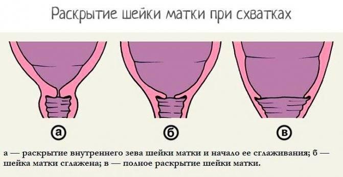 Пальпация шейки матки: как выглядит до зачатия и какие изменения происходят на ранних сроках при беременности.