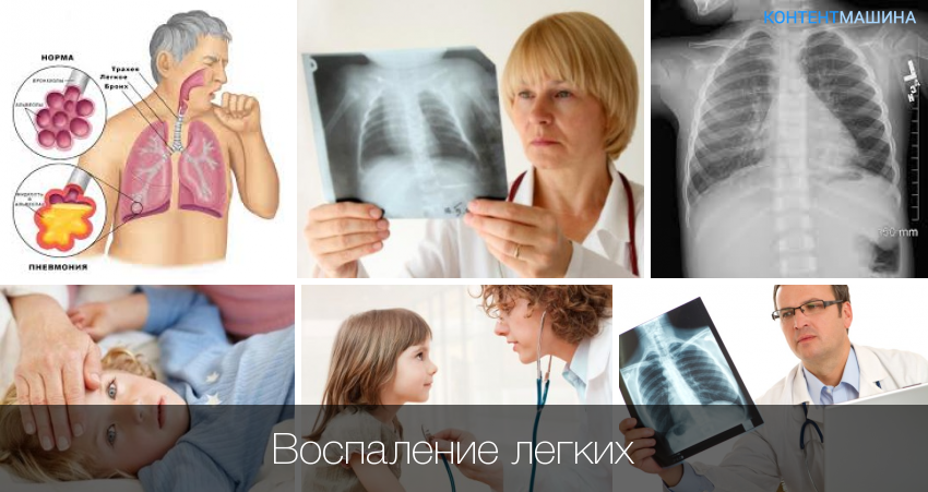 Воспаление легких при беременности: симптомы и методы лечения