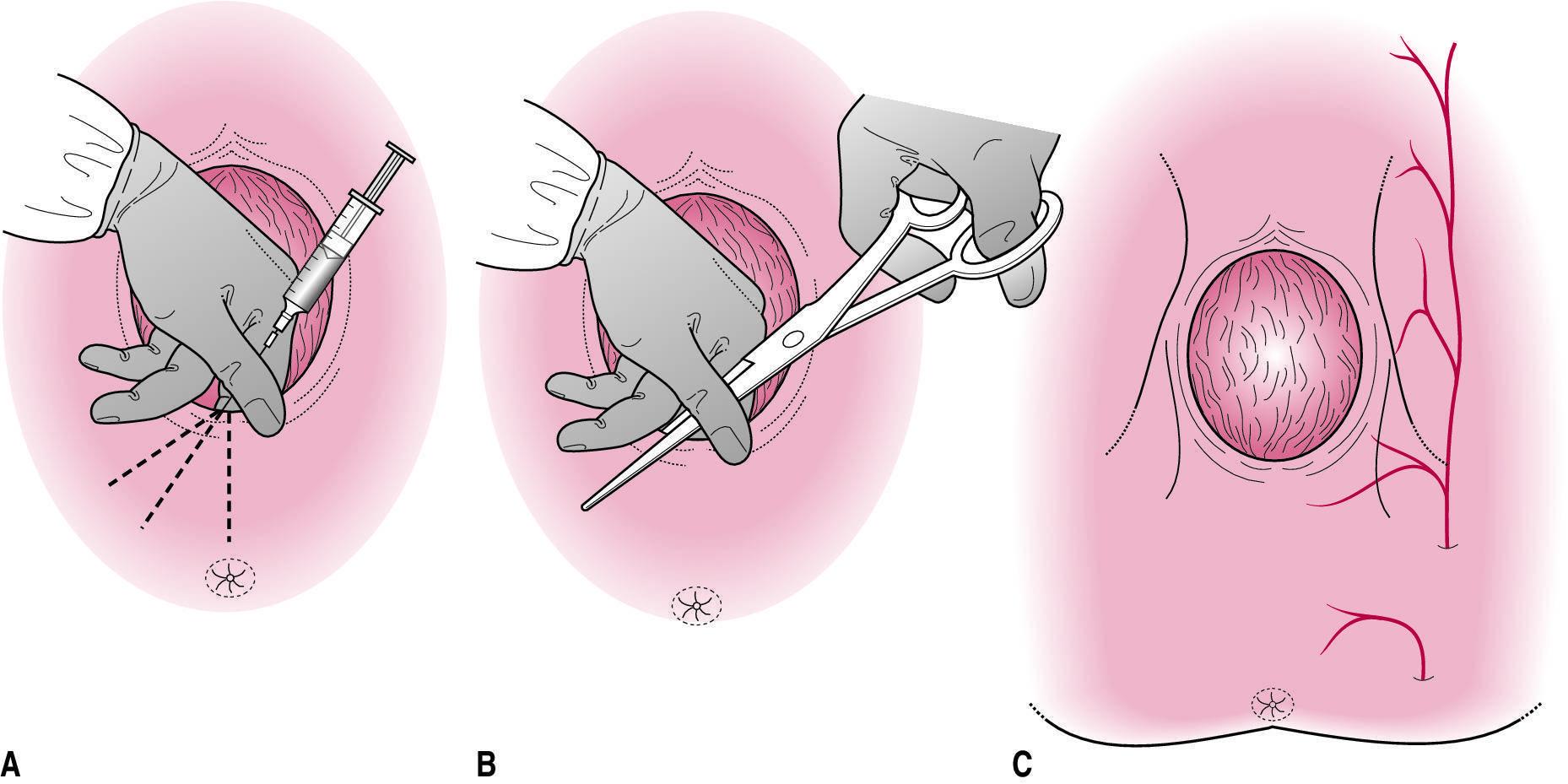 Влагалище после родов: как выглядит, восстановление