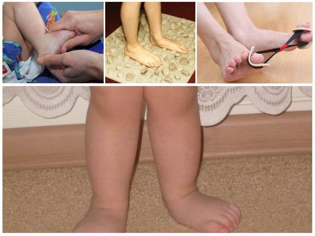 Упражнения при вальгусной деформации стопы у детей: лфк