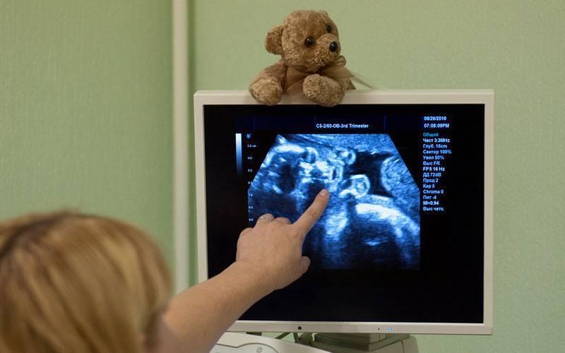 Когда делают узи сердца плода? контроль сердцебиения плода. нормы сердцебиения плода по неделям беременности