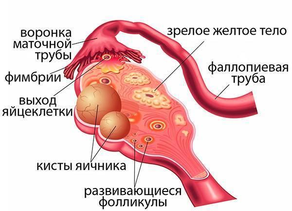 Персистенция желтого тела справа