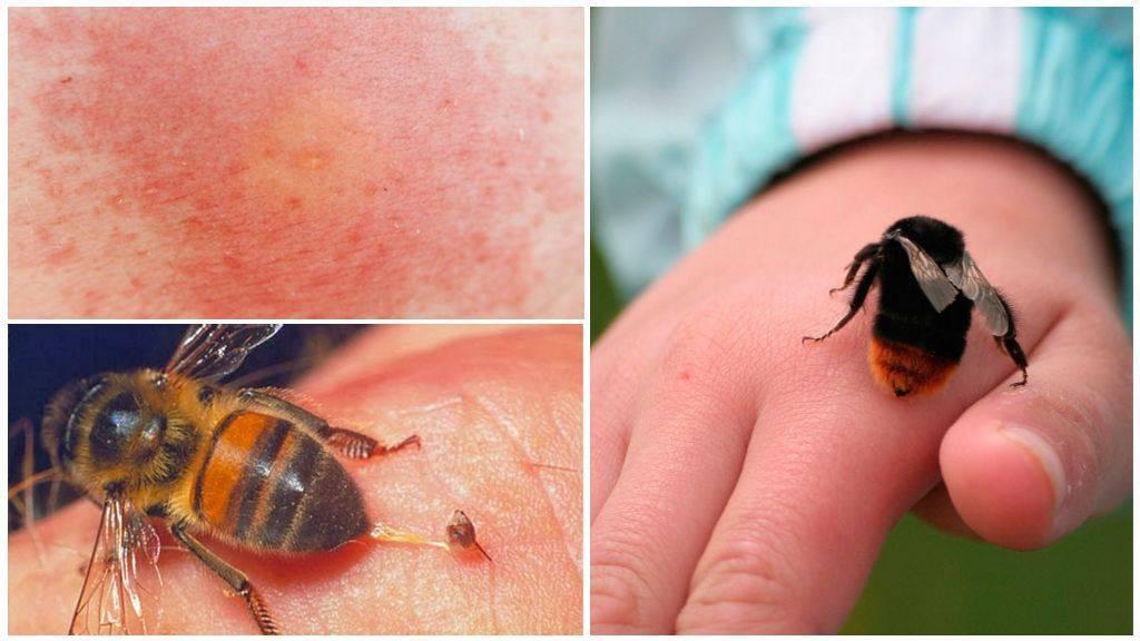 Укусила пчела: что делать в домашних условиях, как оказать первую помощь