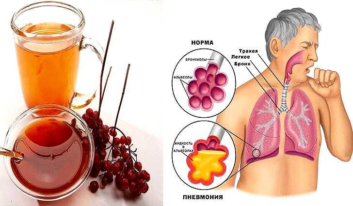Нужно ли лечить остаточный кашель у ребенка и каким образом
