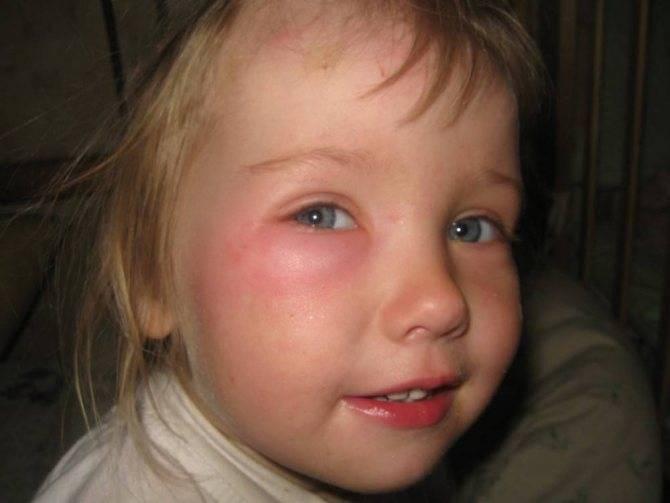 Отек глаза после укуса мошки. комар укусил под глазом: как снять отек самостоятельно?