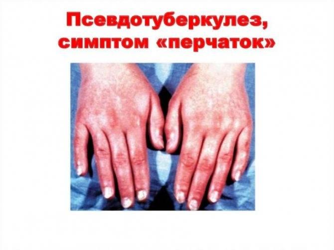 Сыпь при псевдотуберкулез у детей фото